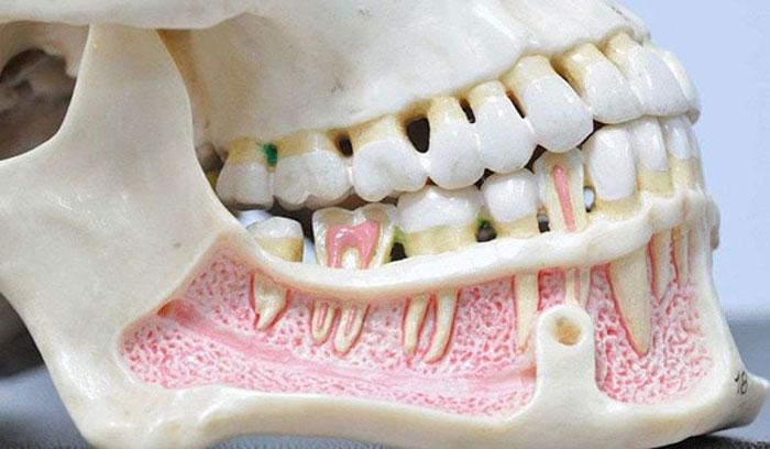 Самые распространённые болезни зубов