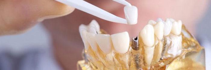 Имплантация зубов – суть метода и его преимущества