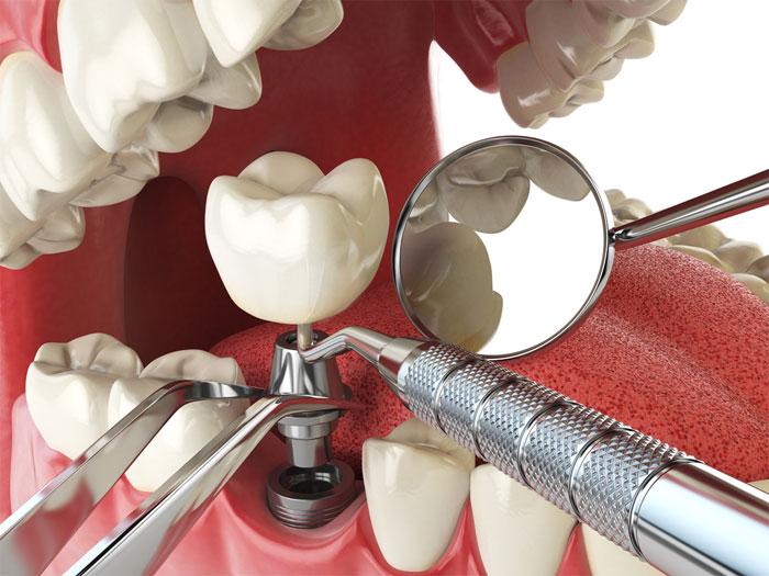 Когда ставят имплант после удаления зуба?