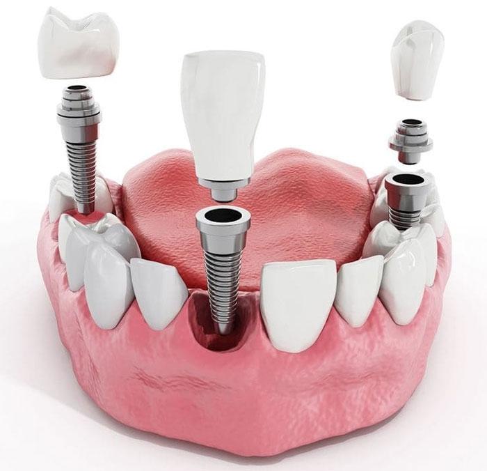 Из чего делают зубы