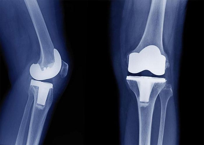 Как проводят эндопротезирование коленного сустава