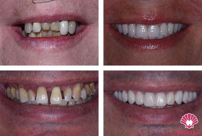 Когда нужно срочно посетить стоматолога