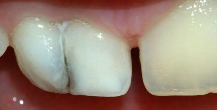 Вам пора к стоматологу