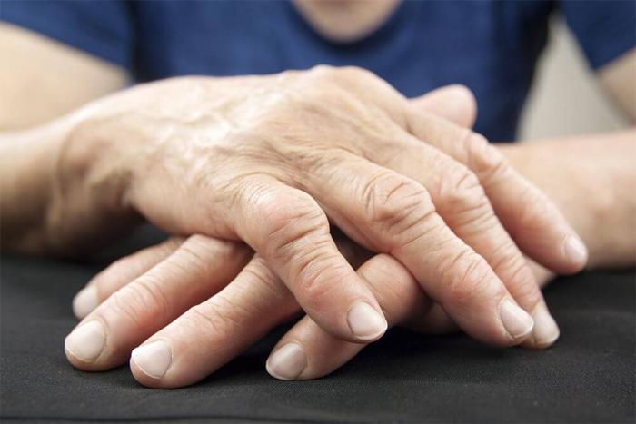 Ревматоидный артрит: причины и диагностика