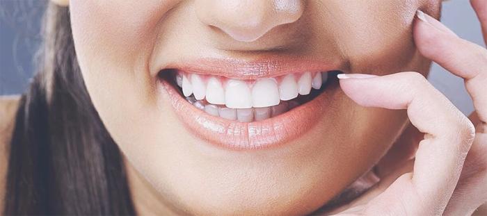Вопросы отбеливания зубов
