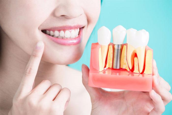 Как проходит операция по имплантации зубов?