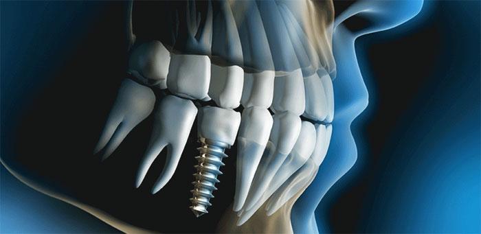 Имплантация зубов: показания и основные методики